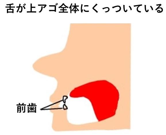 舌の正しい位置のイラスト