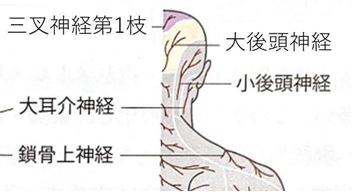 後頭神経痛の領域のイラスト